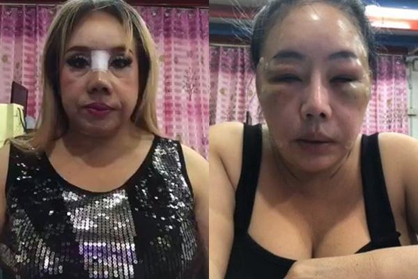 Nữ đại gia U60 yêu 28 lần/ngày gây thất vọng với nhan sắc sau 2 lần phẫu thuật thẩm mỹ-2