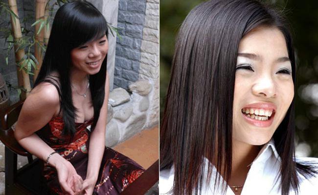 Lạm dụng phẫu thuật thẩm mỹ, loạt sao Việt xuất hiện với gương mặt biến chứng kinh hãi-3