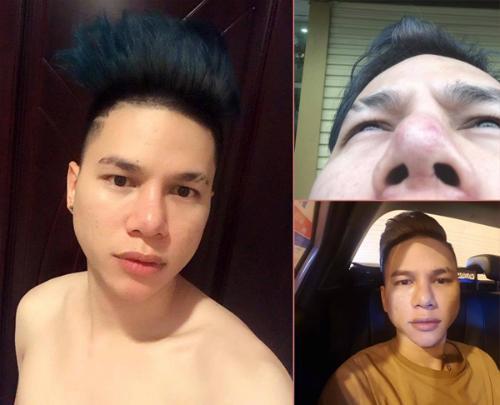 Lạm dụng phẫu thuật thẩm mỹ, loạt sao Việt xuất hiện với gương mặt biến chứng kinh hãi-6