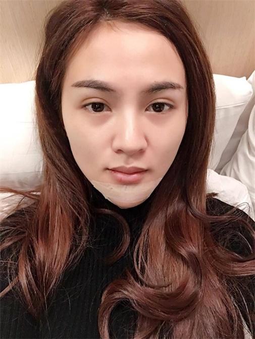 Lạm dụng phẫu thuật thẩm mỹ, loạt sao Việt xuất hiện với gương mặt biến chứng kinh hãi-10