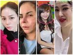 Nữ giám đốc ngân hàng người Hong Kong tử vong sau tiêm 16 mũi botox-2