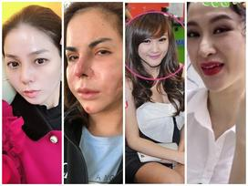 Lạm dụng phẫu thuật thẩm mỹ, loạt sao Việt xuất hiện với gương mặt biến chứng kinh hãi