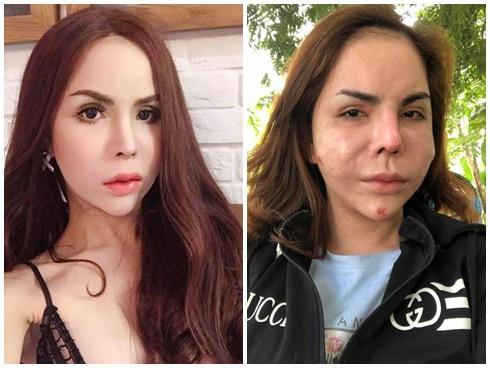 Lạm dụng phẫu thuật thẩm mỹ, loạt sao Việt xuất hiện với gương mặt biến chứng kinh hãi-13