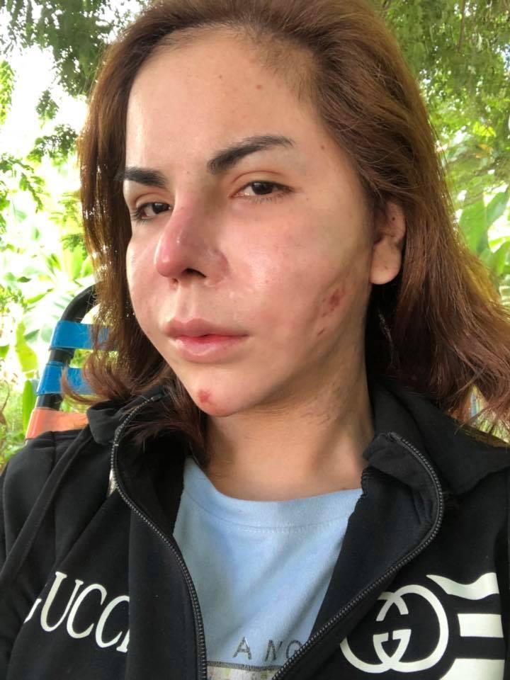 Lạm dụng phẫu thuật thẩm mỹ, loạt sao Việt xuất hiện với gương mặt biến chứng kinh hãi-14