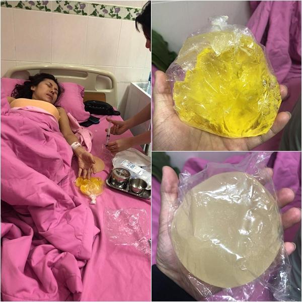 Thánh nữ bolero dance Ivy Trần bị nổ túi ngực sau khi đi máy bay-3