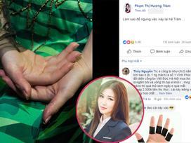 Tự bóc tay đến tứa máu vì stress và mất ngủ, Hương Tràm khiến người hâm mộ lo lắng