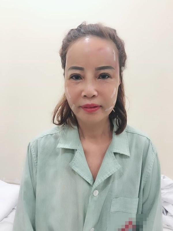 Khoe răng sáng lóa sau khi đầu tư 200 triệu, cô dâu 61 tuổi hôn chồng trẻ tóp má khi livestream khiến người xem ngán ngẩm-3