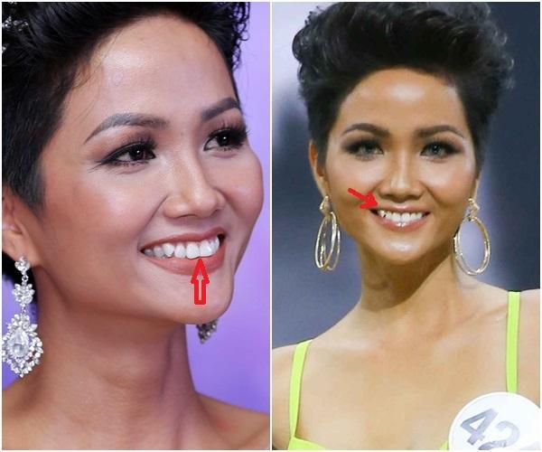 Trước ngày chinh chiến Miss Universe 2018, HHen Niê sung sướng khoe hàm răng khểnh nay đã đều tăm tắp-2