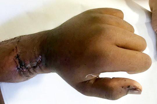 Clip: Người đàn ông đứt lìa bàn tay do ngã vào máy cưa lúc bị bò truy đuổi-3