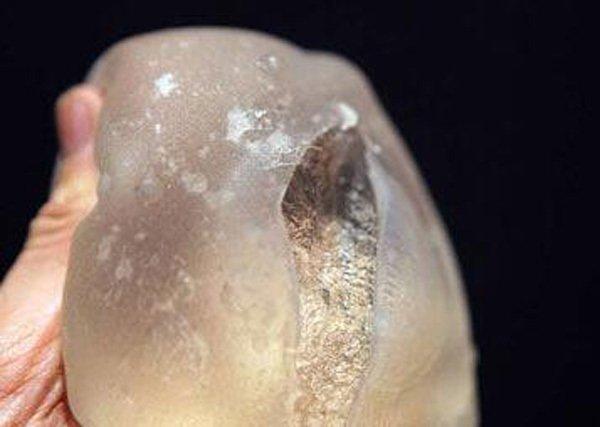 Người mẹ 28 tuổi bị nổ túi ngực 170 triệu đồng khi cho con bú-2