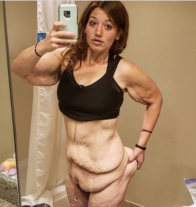 Cơ thể gây ám ảnh của cô gái giảm 141kg trong hơn 1 năm-1