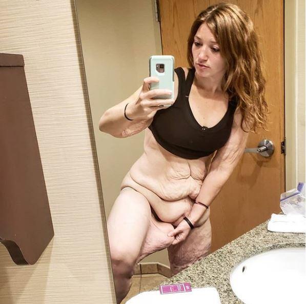 Cơ thể gây ám ảnh của cô gái giảm 141kg trong hơn 1 năm-2