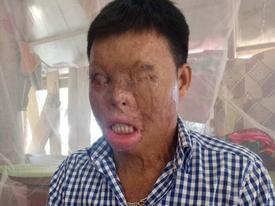 Cuộc sống khốn khổ của chàng trai có khuôn mặt biến dạng vì bị tạt axit nhầm