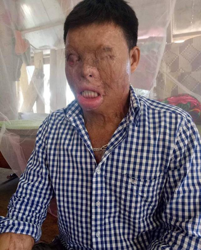 Cuộc sống khốn khổ của chàng trai có khuôn mặt biến dạng vì bị tạt axit nhầm-1