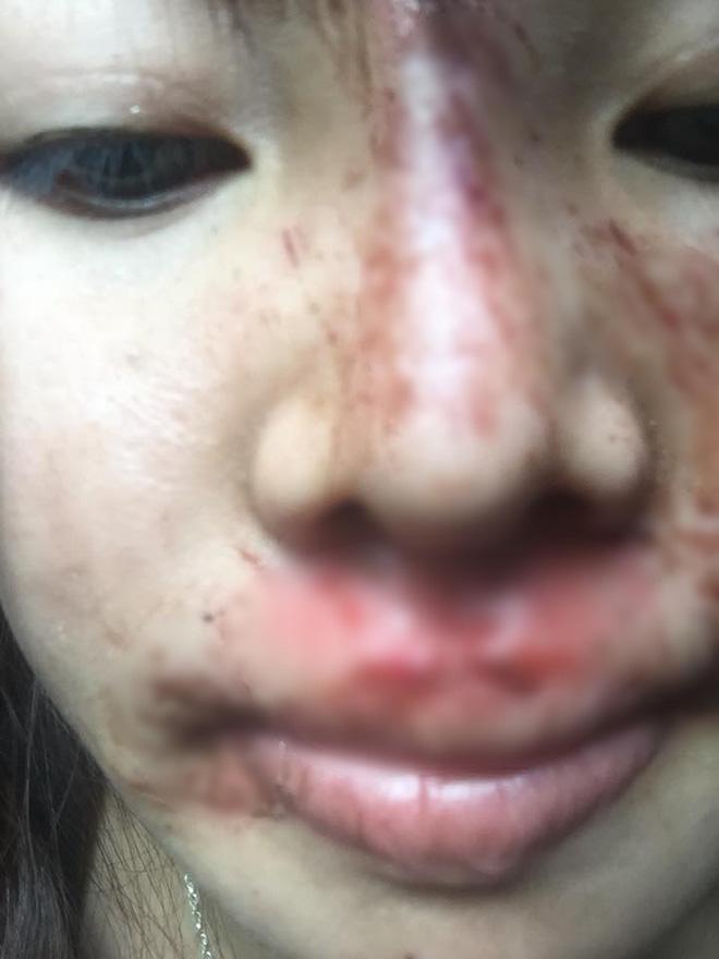 Khoe mặt hết sạch vết bầm tím vì ngã xe nhưng dân mạng chỉ quan tâm hàm răng trắng sứ của Thị Nở tái sinh Quách Phượng-1