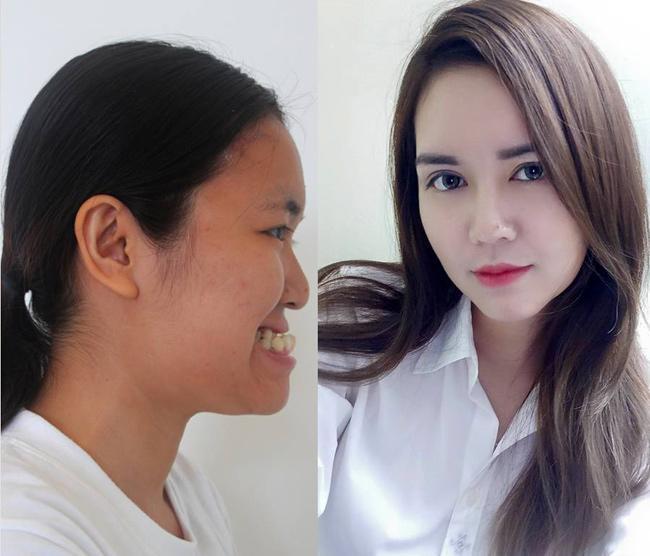 8 ca thẩm mỹ của chị em Việt gây bão dư luận vì biến gái xấu thành tiên-10