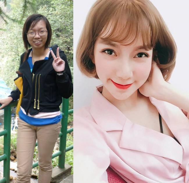 8 ca thẩm mỹ của chị em Việt gây bão dư luận vì biến gái xấu thành tiên-13