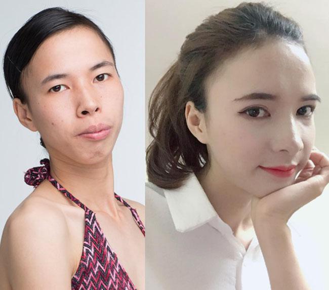 8 ca thẩm mỹ của chị em Việt gây bão dư luận vì biến gái xấu thành tiên-14