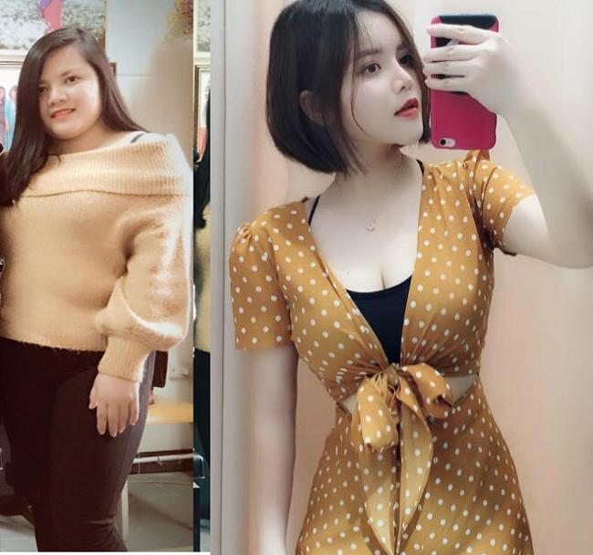 8 ca thẩm mỹ của chị em Việt gây bão dư luận vì biến gái xấu thành tiên-4