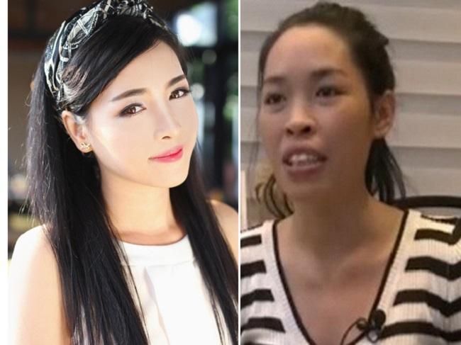 8 ca thẩm mỹ của chị em Việt gây bão dư luận vì biến gái xấu thành tiên-5