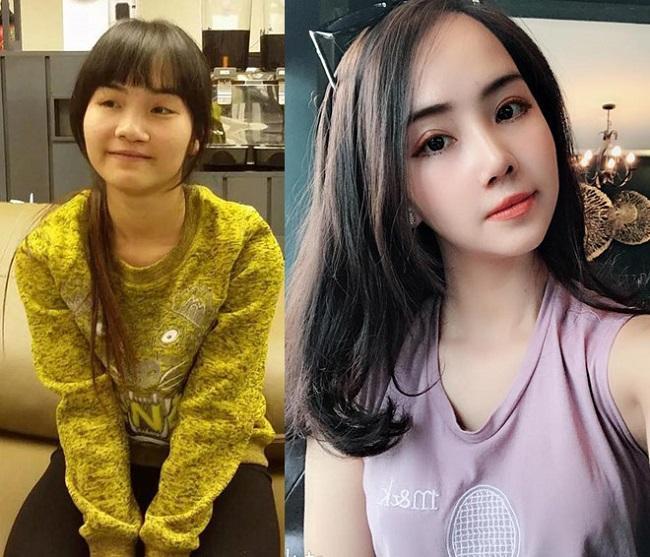 8 ca thẩm mỹ của chị em Việt gây bão dư luận vì biến gái xấu thành tiên-7
