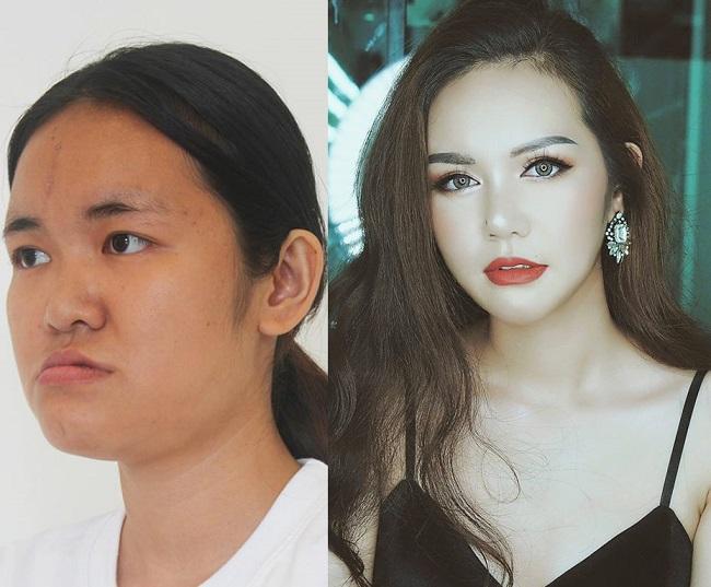 8 ca thẩm mỹ của chị em Việt gây bão dư luận vì biến gái xấu thành tiên-9