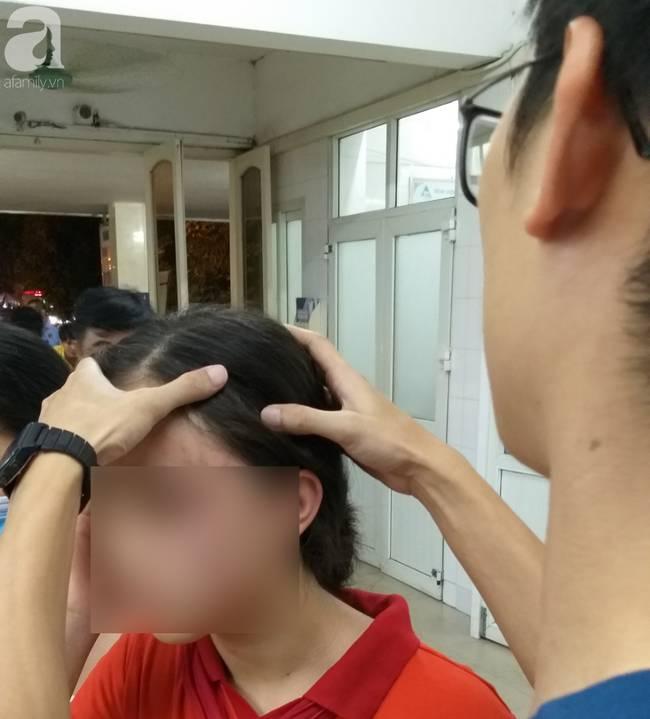 Nữ sinh lớp 9 ở Hà Nội tố bị vợ hai của bố đập đầu, đánh tới mức phải nhập viện-4