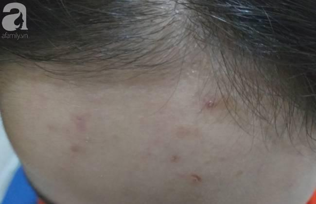 Nữ sinh lớp 9 ở Hà Nội tố bị vợ hai của bố đập đầu, đánh tới mức phải nhập viện-6