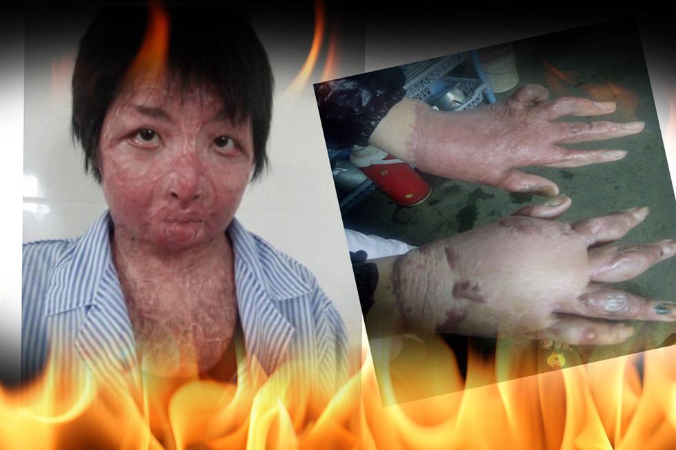 Hé lộ nhan sắc và cuộc sống hiện tại của cô gái trẻ bị chồng tẩm xăng thiêu sống gây chấn động một thời ở Hưng Yên-2