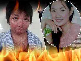 Hé lộ nhan sắc và cuộc sống hiện tại của cô gái trẻ bị chồng tẩm xăng thiêu sống gây chấn động một thời ở Hưng Yên