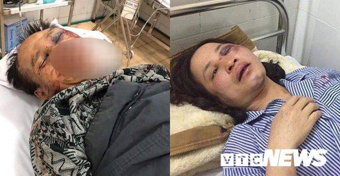 Huynh đệ tương tàn ở Vân Đồn, luật sư: Kết luận điều tra có dấu hiệu bỏ lọt tội phạm-2