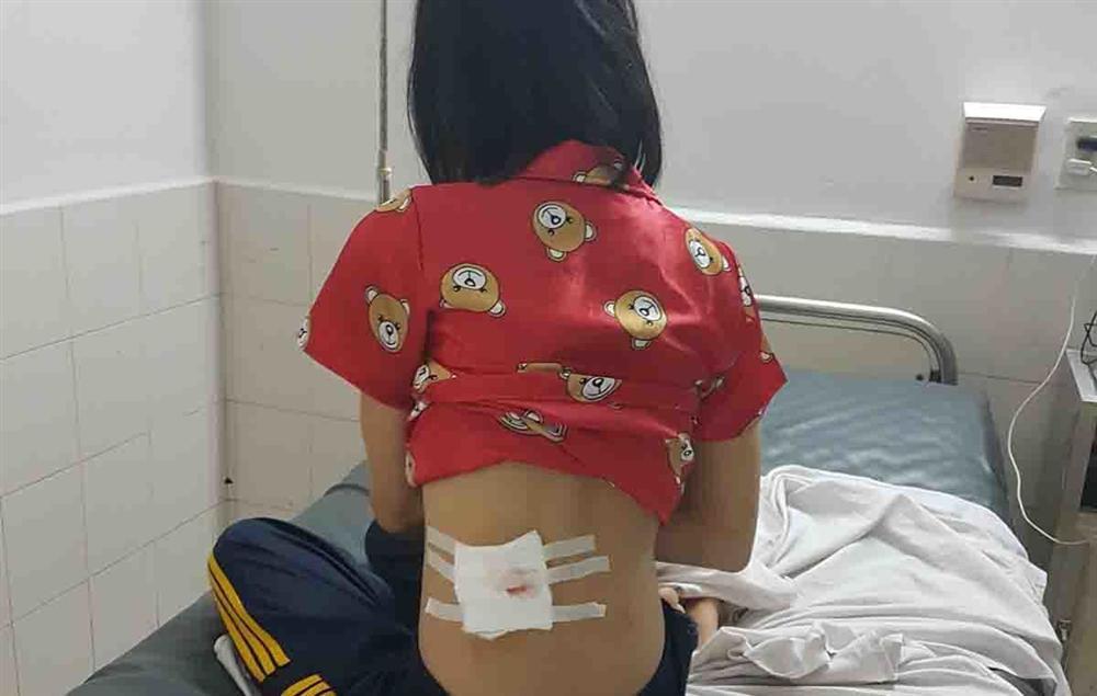 Phú Yên: Công an xác nhận cô gái trúng đạn từ súng cao su của CSGT-2