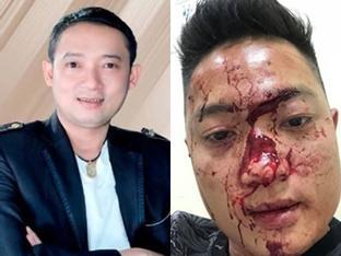 Danh hài Chiến Thắng bị tố thuê vệ sĩ đánh đập khán giả chảy máu mặt?