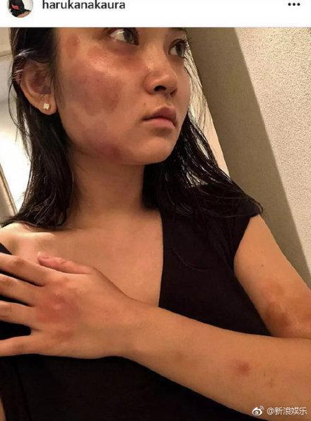 Nam diễn viên Bộ bộ kinh tình bạo hành bạn gái, thâm tím toàn thân-1