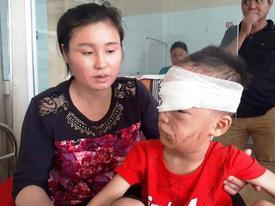 Thanh Hóa: Kinh hoàng bé trai 6 tuổi bị chó nhà cắn rách mặt