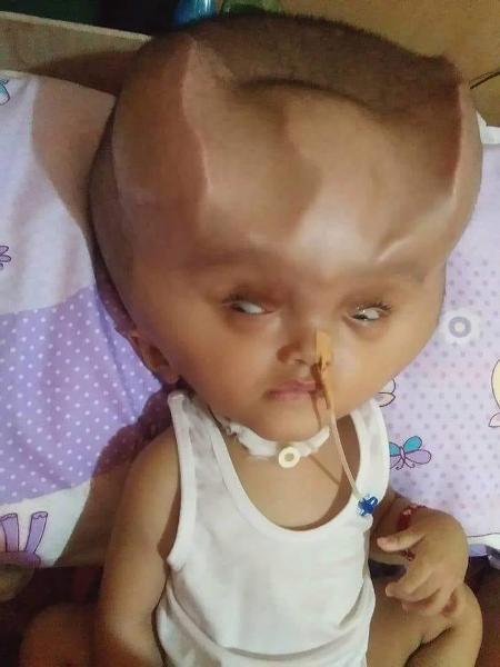 Em bé 1 tuổi mang cặp sừng quỷ dữ sau ca phẫu thuật bất thành-1