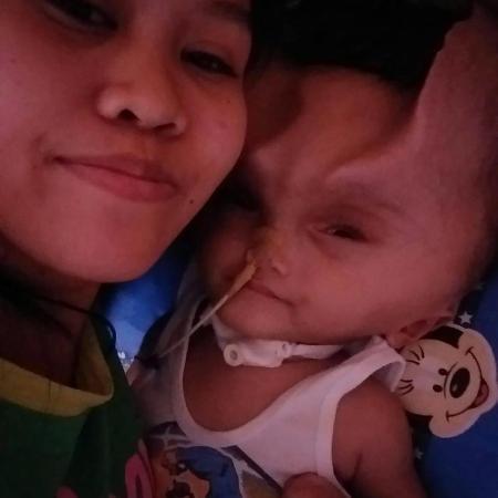 Em bé 1 tuổi mang cặp sừng quỷ dữ sau ca phẫu thuật bất thành-3