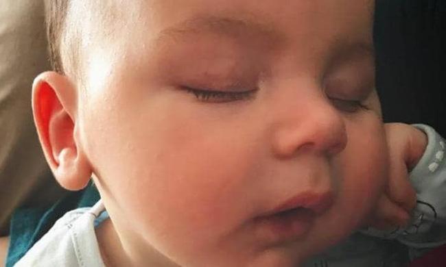 Theo dõi con ngủ qua video, mẹ phát hiện chấm đen lớn đang di chuyển trên người bé-3