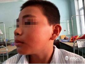 Cậu bé Quảng Bình sợ hãi kể lại giây phút bị cô giáo phạt 231 cái tát đến nhập viện