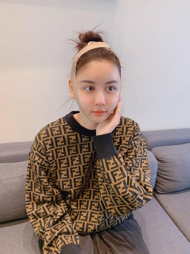 Sau 11 ngày phẫu thuật thẩm mỹ, Hà Lade lên tiếng khi bị chê gương mặt quá đại trà, đơ cứng-2