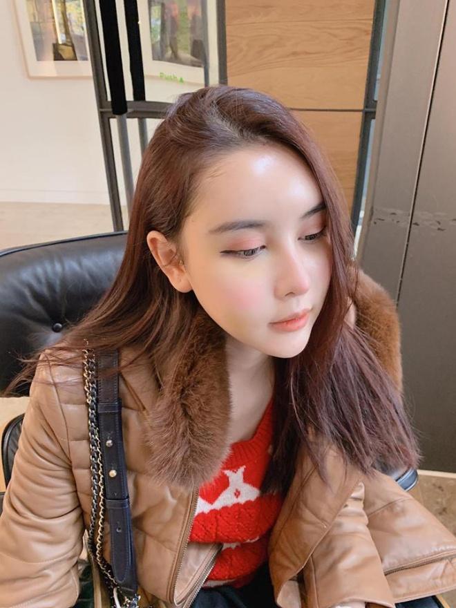 Sau 11 ngày phẫu thuật thẩm mỹ, Hà Lade lên tiếng khi bị chê gương mặt quá đại trà, đơ cứng-3