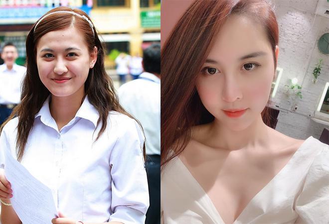 Sau 11 ngày phẫu thuật thẩm mỹ, Hà Lade lên tiếng khi bị chê gương mặt quá đại trà, đơ cứng-4