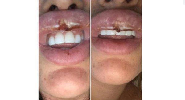 Cô gái suýt phải cắt bỏ môi vì theo đuổi trào lưu tiêm botox-3