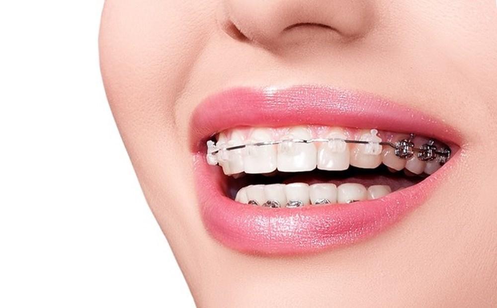 Mũi hếch - răng hô - mồm vẩu: Những nét TƯỚNG XẤU mang đến vận số KHÓ KHĂN-2