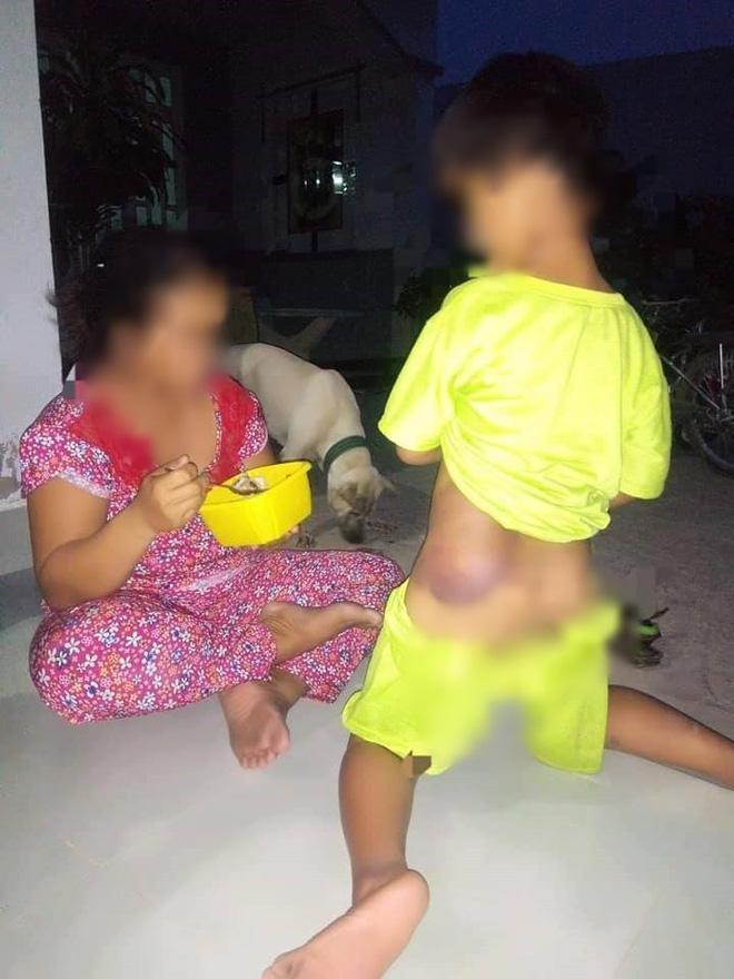 Long An: Bé trai khuyết tật 7 tuổi bị cô giáo đánh bầm tím cả cơ thể-1