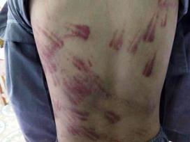 Thanh Hóa: Cháu bé mồ côi bị sư thầy đánh bầm tím khắp cơ thể