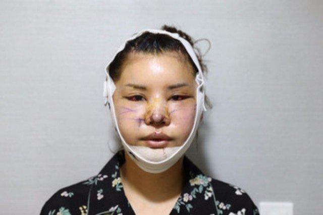 Bị chê da đen - răng quặp, quý cô 36 tuổi quyết đập mặt xây lại 15 lần để trẻ trung như gái 18-2