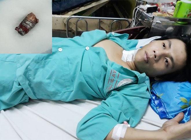 Suýt chết vì bị súng bút bắn đạn ghim cổ-1