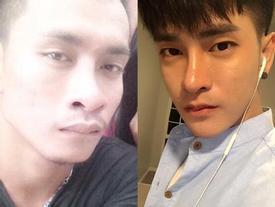 Thanh niên 25 tuổi chi bội tiền cho 30 cuộc phẫu thuật thẩm mỹ để giống trai Hàn