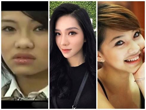 HÁ HỐC MỒM trước loạt ảnh 'đào mộ' thời chưa phẫu thuật thẩm mỹ của diễn viên 'thị phi' Lưu Đê Li